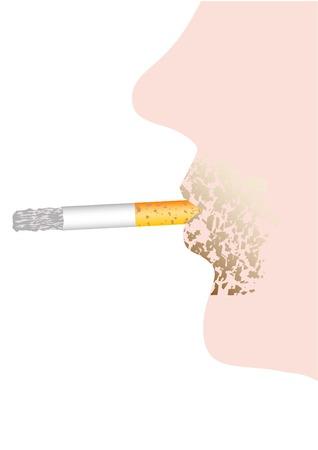 рак губы влияние курения