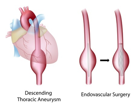 Treatment of aneurysms of the thoracic aorta