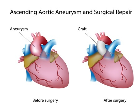 Aneurysm of the ascending aorta before and after surgery