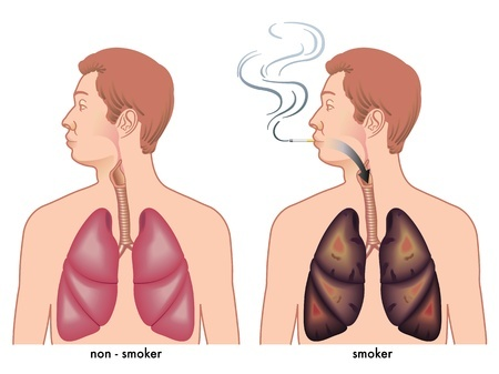 The effect of smoking on the lungs