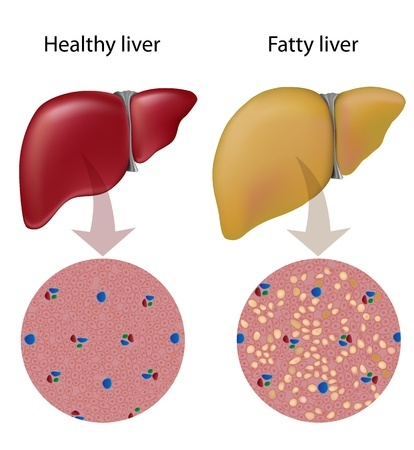 Fatty liver disease