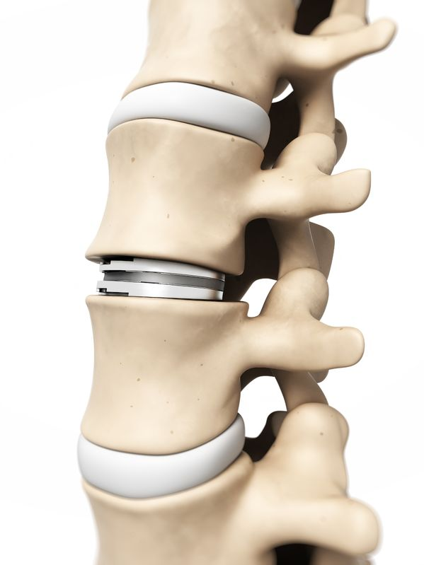 Intervertebral disc replacement