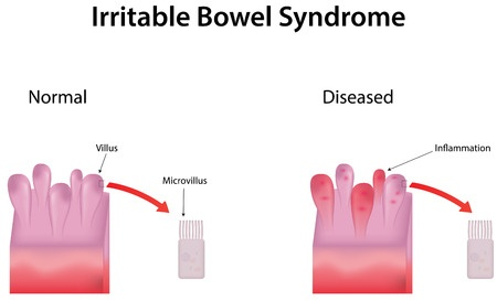 irritable bowel syndrome (ibs) - treatment in israel | d.r.a medical, Human body