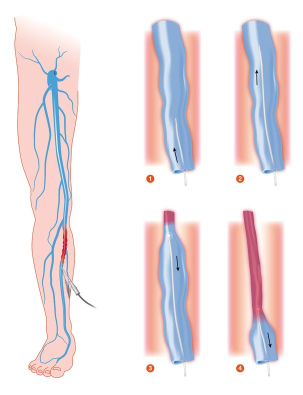 Laser treatment of varicose veins
