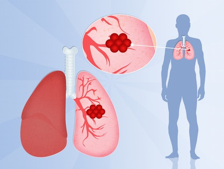 The localization of the tumor in the lung
