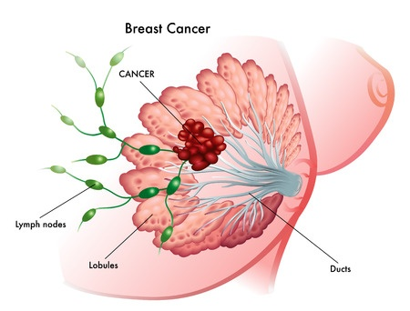Mammary cancer