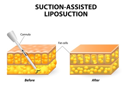 Mechanism of liposuction