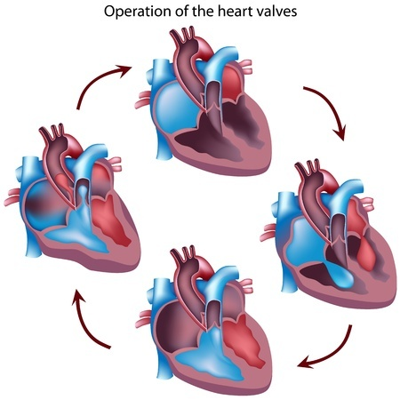 Operation on the heart valve