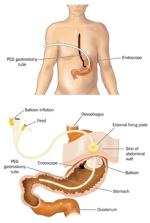 Percutaneous gastrostomy