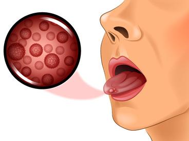 симптомы рака языка
