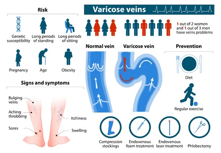 The problems of varicose veins