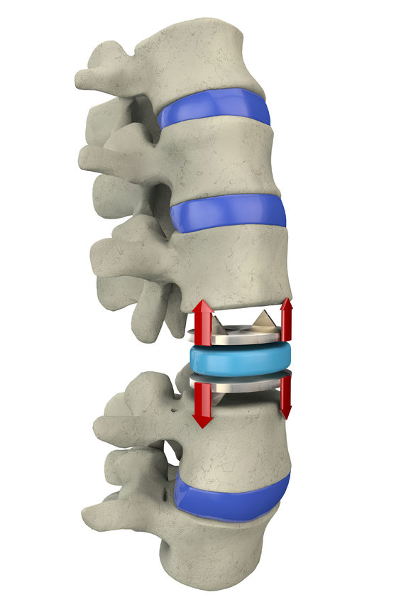 Replacement of the intervertebral disc