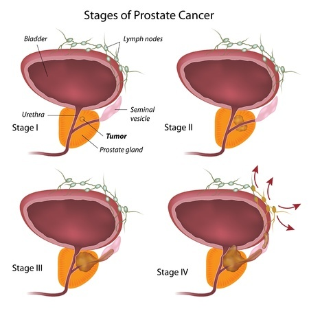 Stage prostate cancer