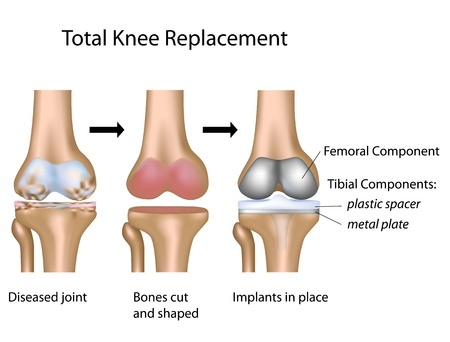 Total knee replasment