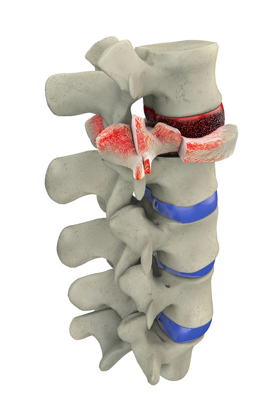Traumatic vertebral
