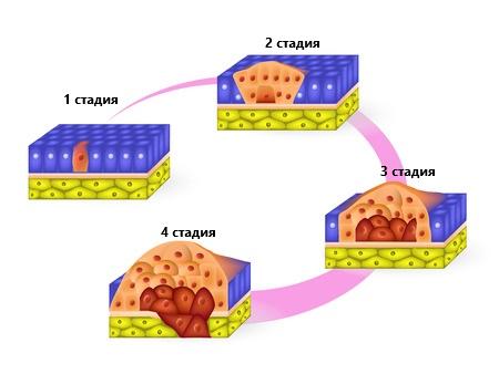 стадии плоскоклеточного рака кожи